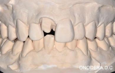 歯型をとって石膏模型を製作します。